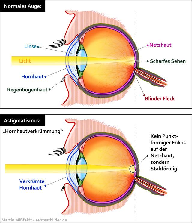 Astigmatismus (Auge)
