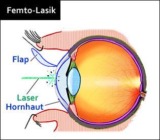 Femto-LASIK Verfahren