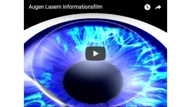 Augen lasern Informationsfilm